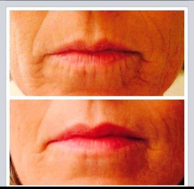 Acute Care lips result